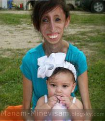 دختری که برای زنده ماندن مجبور است روزی 15 وعده غذا بخورد!