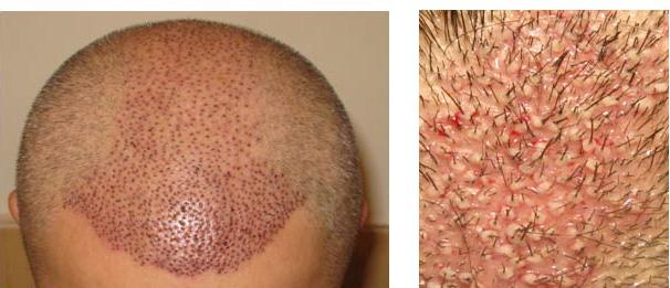 ریزش مو با ریشه سفید
