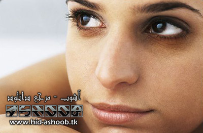 www.hid-ashoob.tk | از بین بردن سیاهی زیر چشم