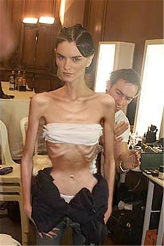عكس دختر مدل: دختر بسیار لاغر و پوست و استخوان 1