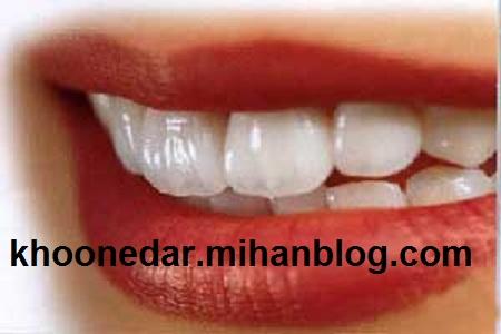 دندان های سالم healthy teeth