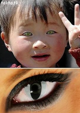 Nong Youhui چشم
