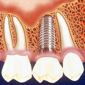 ایمپلنت دندانی