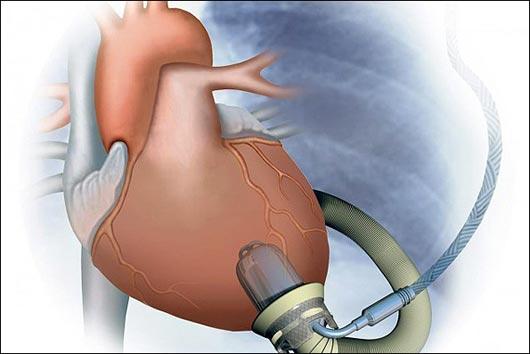قلب مصنوعی