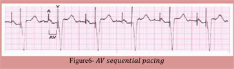 AV Sequential Pacing