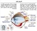 نمای داخلی چشم انسان