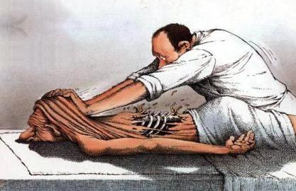 لمس درمانی