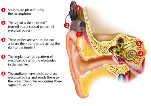 ایمپلنت حلزونی گوش