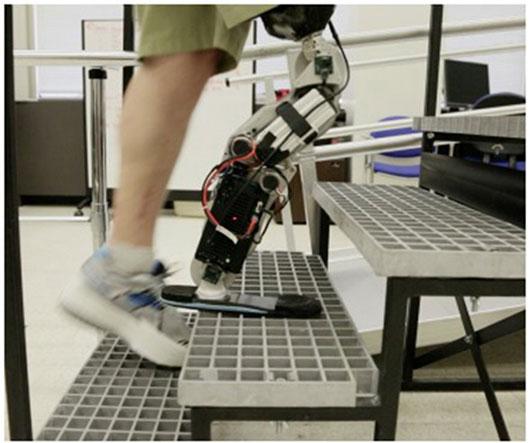 Mind Controlled Bionic Leg